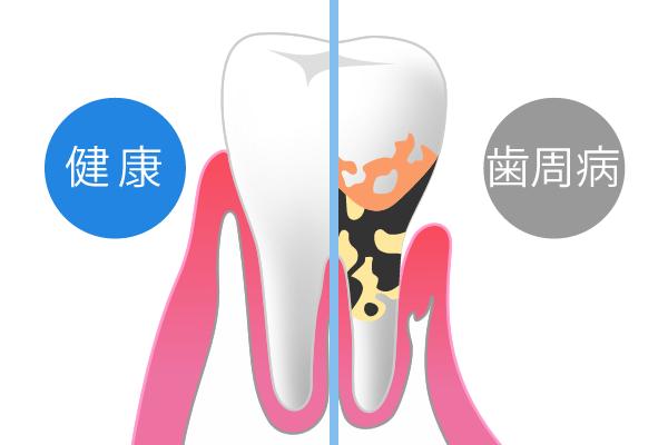 歯周病は「高齢者の病気」ではありません